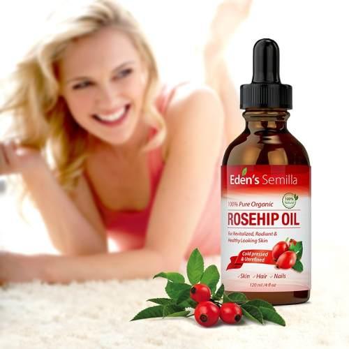 Aceite de rosa mosqueta: propiedades en cosmética