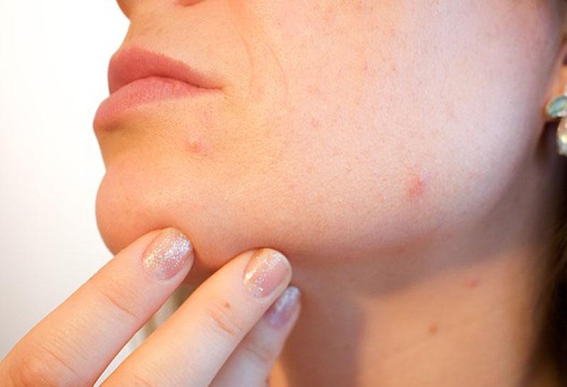 Ácido salicílico para cerrar poros.