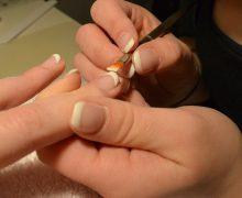manchas uñas