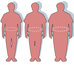 obesidad normopeso, image by Wikipedia